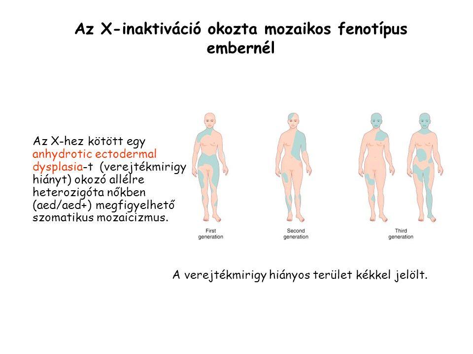 Az X-hez kötött egy anhydrotic ectodermal dysplasia-t (verejtékmirigy hiányt) okozó allélre heterozigóta nőkben (aed/aed+) megfigyelhető szomatikus mozaicizmus.