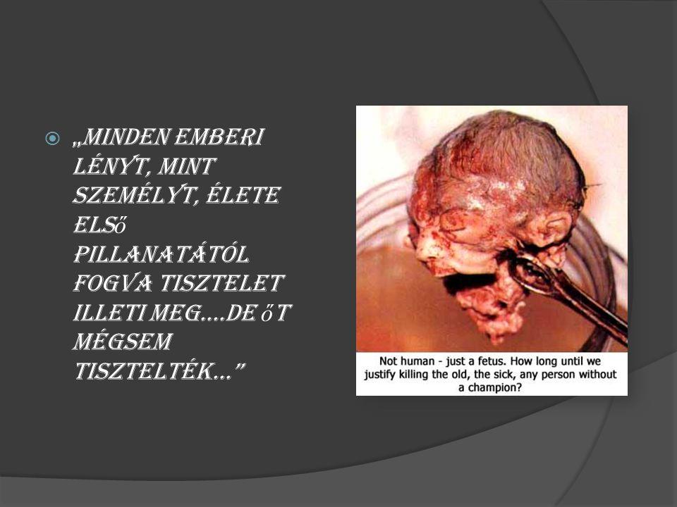""" """"Minden emberi lényt, mint személyt, élete els ő pillanatától fogva tisztelet illeti meg....De ő t mégsem tisztelték..."""