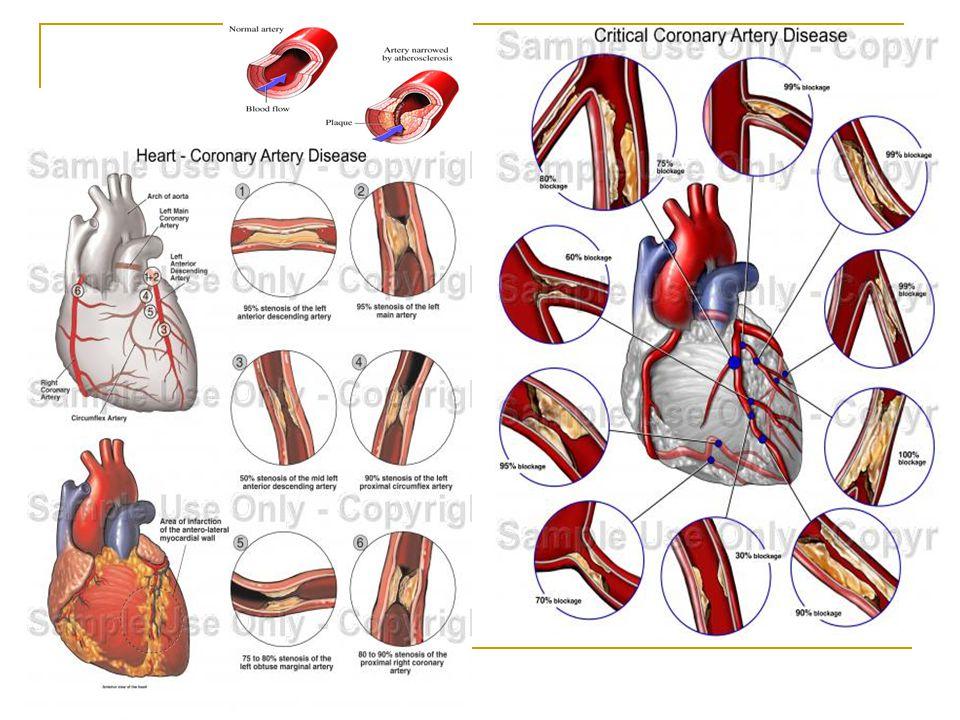 Myocardium oxigén ellátásának javítása Oxigén Coronaria dilatorok  Nitrátok nagyon hatékony értágítók, a szív terhelését (preload) csökkentik, elsősorban a vénás rendszert tágítják.