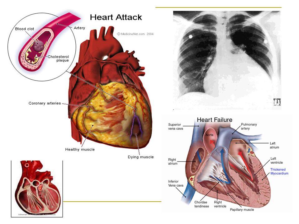 Hypertonia A magas vérnyomás csökkenti a várható élettartamot, fokozza a szívelégtelenség, koronária betegség (ISZB), stroke, retinopátia, veseelégtelenség előfordulásának kockázatát.