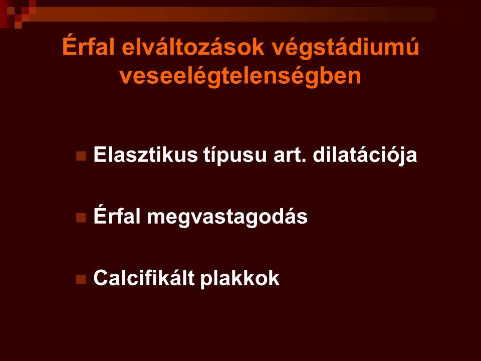Érfal elváltozások végstádiumú veseelégtelenségben Elasztikus típusu art. dilatációja Érfal megvastagodás Calcifikált plakkok