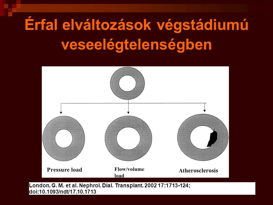 Érfal elváltozásokat okozó patogenetikai tényezők veseelégtelenségben érfalra gyakorolt nyíró erő változás a véráram sebességében nem helyi növekedési faktorok/ Ca,P,Dvit,PTH dyslipdaemia RAAS oxidativ stress gyulladás catecholaminok endothelin hypercoagulabilitás hyperhomocysteinaemia diabetes kor dohányzás hypertensio A rteriosclerosis Atherosclerosis Veseelégtelen- ségben