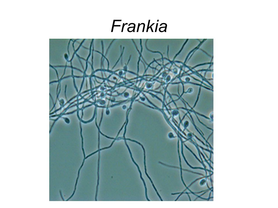 Frankia