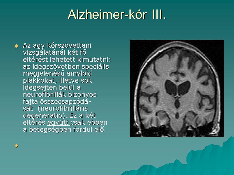 Alzheimer-kór III.  Az agy kórszövettani vizsgálatánál két fő eltérést lehetett kimutatni: az idegszövetben speciális megjelenésű amyloid plakkokat,