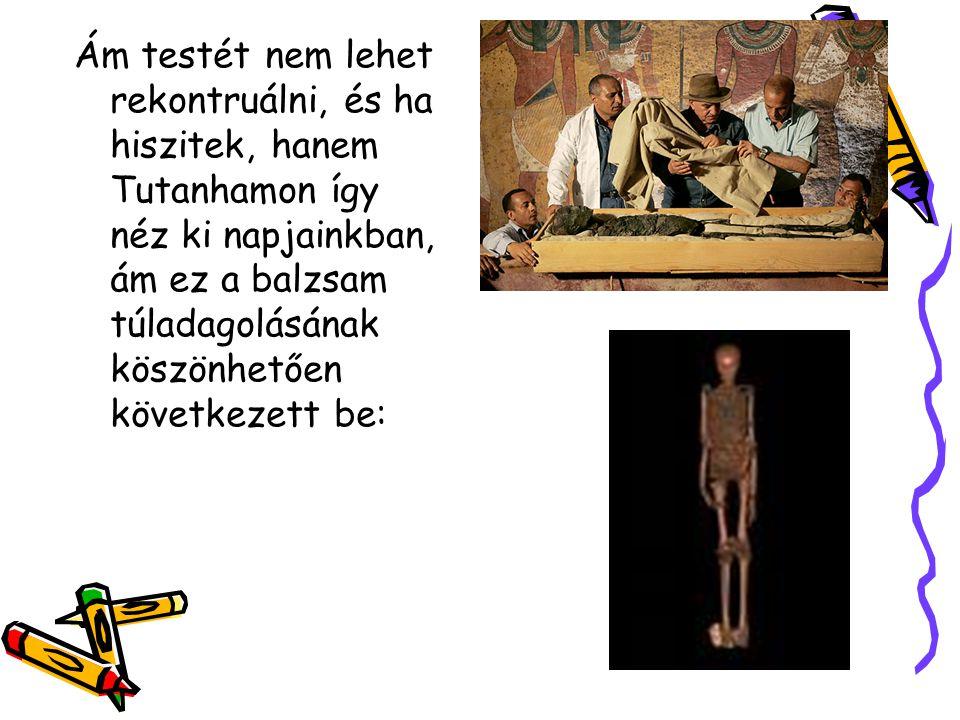 Ám testét nem lehet rekontruálni, és ha hiszitek, hanem Tutanhamon így néz ki napjainkban, ám ez a balzsam túladagolásának köszönhetően következett be