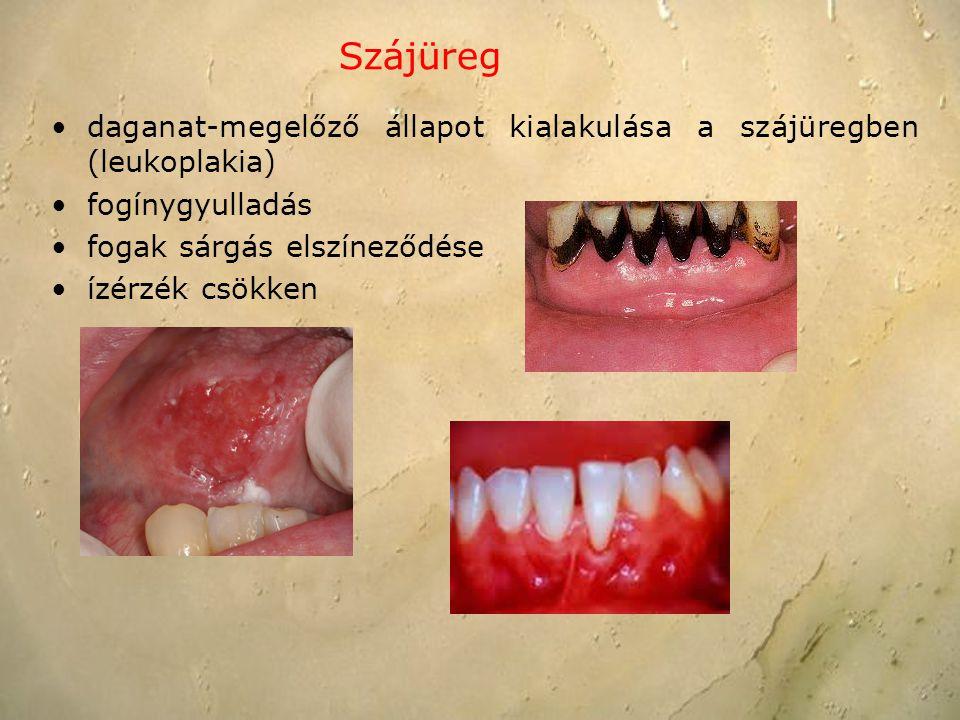 daganat-megelőző állapot kialakulása a szájüregben (leukoplakia) fogínygyulladás fogak sárgás elszíneződése ízérzék csökken Szájüreg