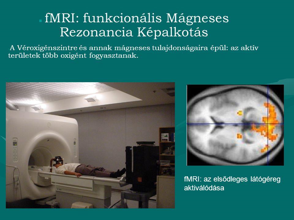 fMRI: funkcionális Mágneses Rezonancia Képalkotás - A Véroxigénszintre és annak mágneses tulajdonságaira épül: az aktív területek több oxigént fogyasz