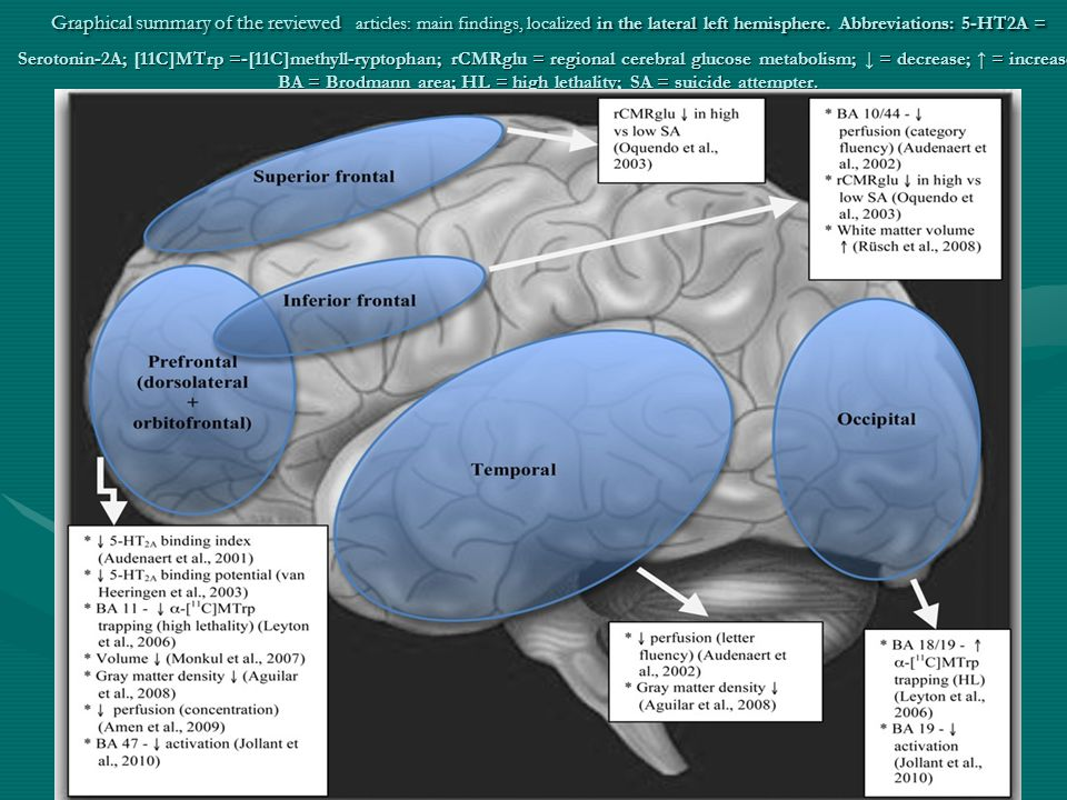 Graphical summary of the reviewed articles: main findings, localized in the lateral left hemisphere.