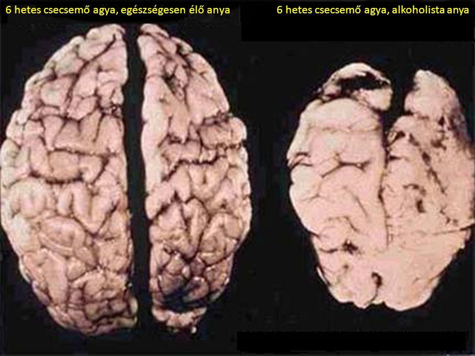 6 hetes csecsemő agya, egészségesen élő anya6 hetes csecsemő agya, alkoholista anya