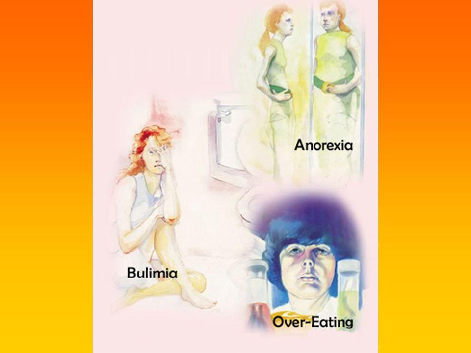 Történet Anorexia nervosa I.(an-orexis: vágyak hiánya) 13.