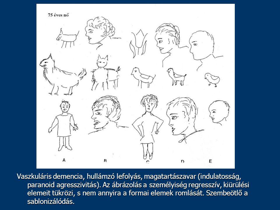 Vaszkuláris demencia, hullámzó lefolyás, magatartászavar (indulatosság, paranoid agresszivitás). Az ábrázolás a személyiség regresszív, kiürülési elem