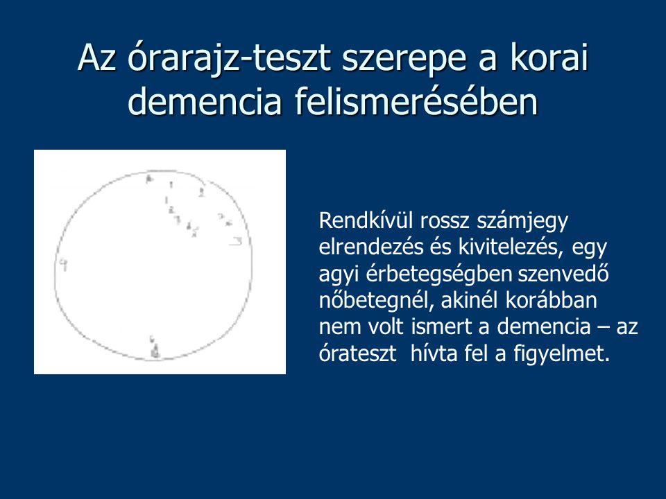 Az órarajz-teszt szerepe a korai demencia felismerésében Rendkívül rossz számjegy elrendezés és kivitelezés, egy agyi érbetegségben szenvedő nőbetegné