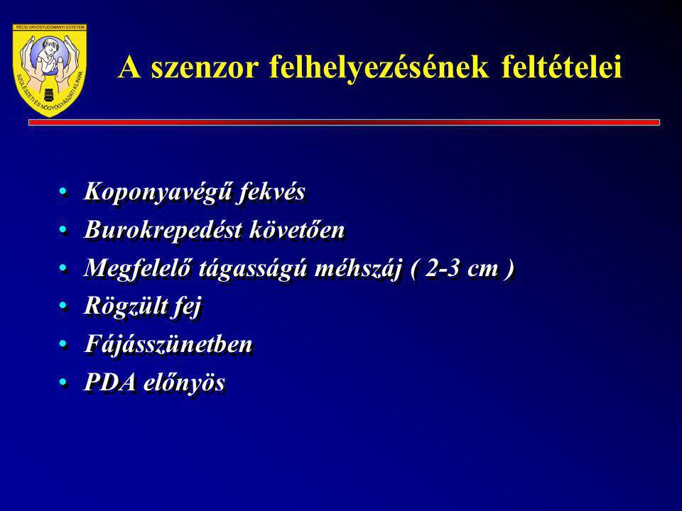 A szenzor felhelyezésének feltételei Koponyavégű fekvés Burokrepedést követően Megfelelő tágasságú méhszáj ( 2-3 cm ) Rögzült fej Fájásszünetben PDA e