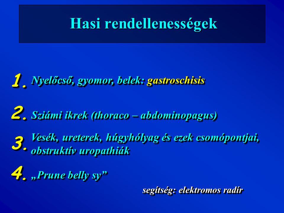 Hasi rendellenességek Nyelőcső, gyomor, belek segítség: elektromos radír Nyelőcső, gyomor, belek: gastroschisis 1.1. Sziámi ikrek (thoraco – abdominop