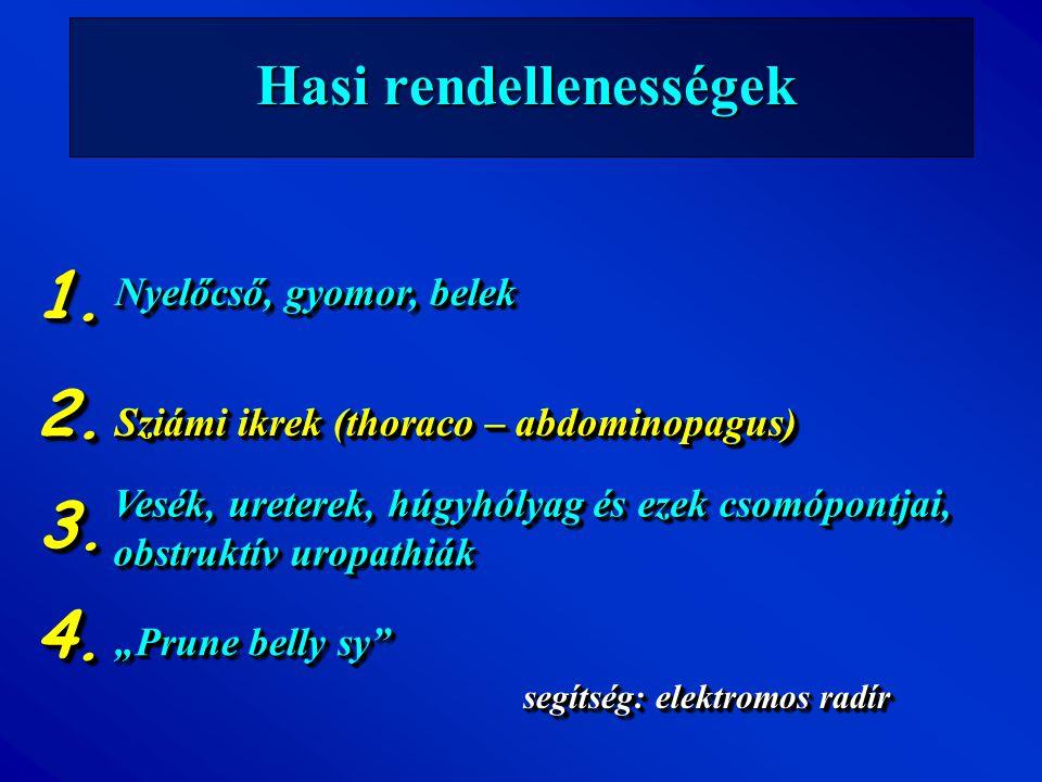 """Nyelőcső, gyomor, belek Hasi rendellenességek segítség: elektromos radír 1.1. Sziámi ikrek (thoraco – abdominopagus) """"Prune belly sy"""" 2.2. 4.4. 3.3. V"""
