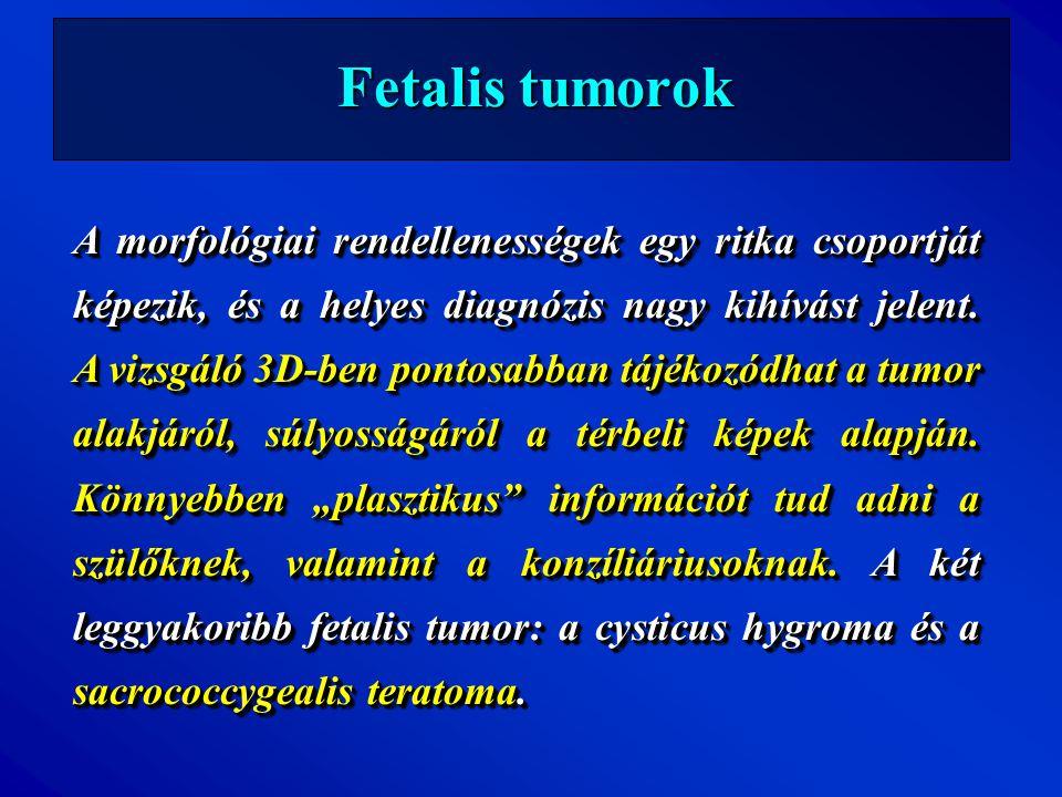 Fetalis tumorok A morfológiai rendellenességek egy ritka csoportját képezik, és a helyes diagnózis nagy kihívást jelent. A vizsgáló 3D-ben pontosabban