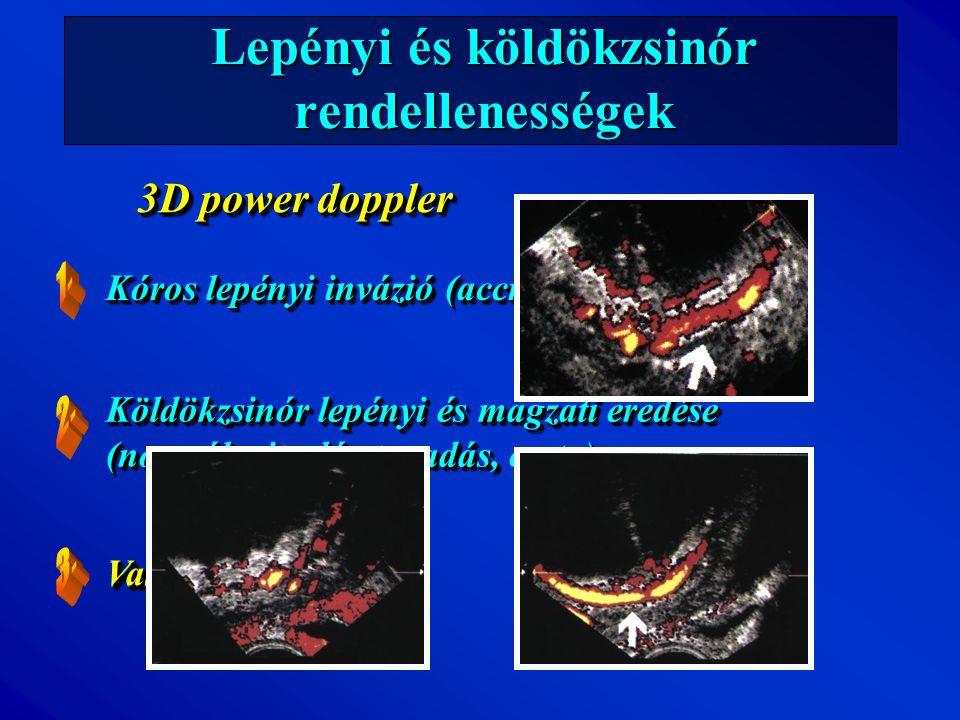 Lepényi és köldökzsinór rendellenességek Kóros lepényi invázió (accret, incret, percret) Vasa previa 3D power doppler Vasa previa Köldökzsinór lepényi