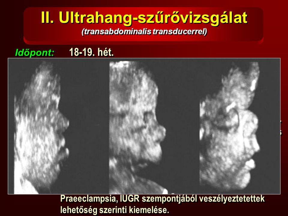 II. Ultrahang-szűrővizsgálat (transabdominalis transducerrel) Időpont: 18-19. hét. Vizsgálható: Időpont: 18-19. hét. Vizsgálható:  koponya (BPD, HC,