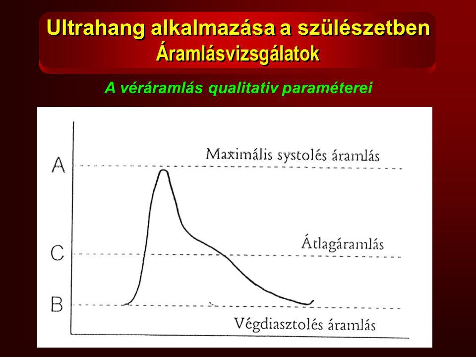 A véráramlás qualitativ paraméterei Ultrahang alkalmazása a szülészetben Áramlásvizsgálatok