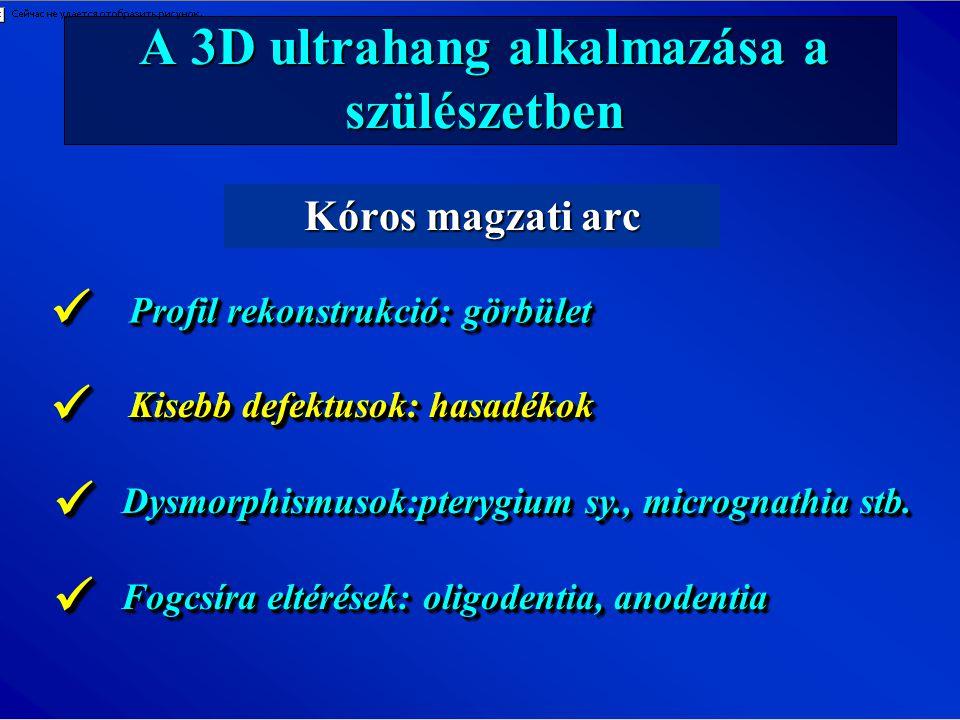 A 3D ultrahang alkalmazása a szülészetben Kóros magzati arc Profil rekonstrukció: görbület Kisebb defektusok: hasadékok Dysmorphismusok:pterygium sy.,