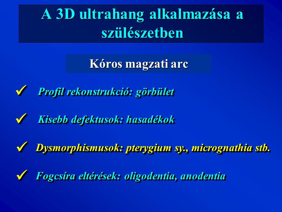 A 3D ultrahang alkalmazása a szülészetben Kóros magzati arc Profil rekonstrukció: görbület Kisebb defektusok: hasadékok Dysmorphismusok: pterygium sy.