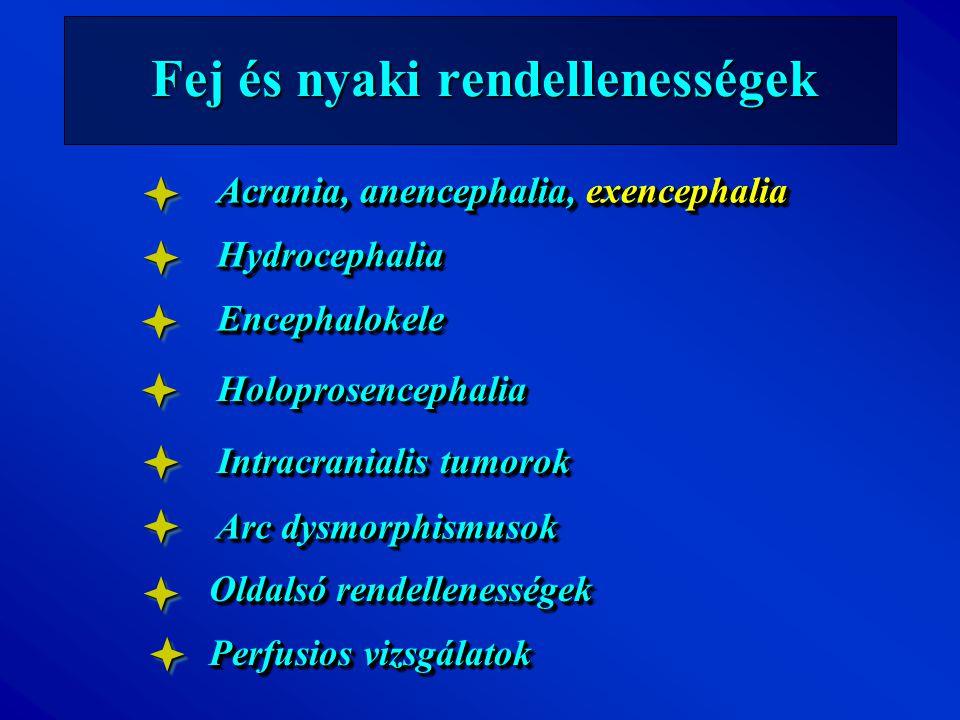 Fej és nyaki rendellenességek Acrania, anencephalia, exencephalia HydrocephaliaHydrocephalia EncephalokeleEncephalokele HoloprosencephaliaHoloprosence