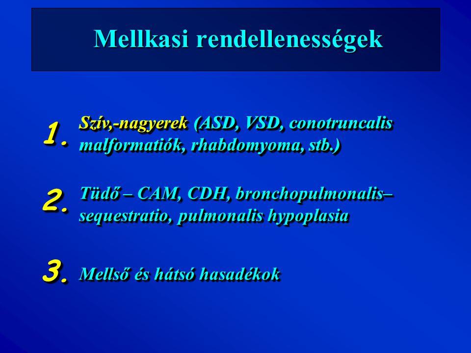 Mellkasi rendellenességek Szív,-nagyerek (ASD, VSD, conotruncalis malformatiók, rhabdomyoma, stb.) Tüdő – CAM, CDH, bronchopulmonalis– sequestratio, p
