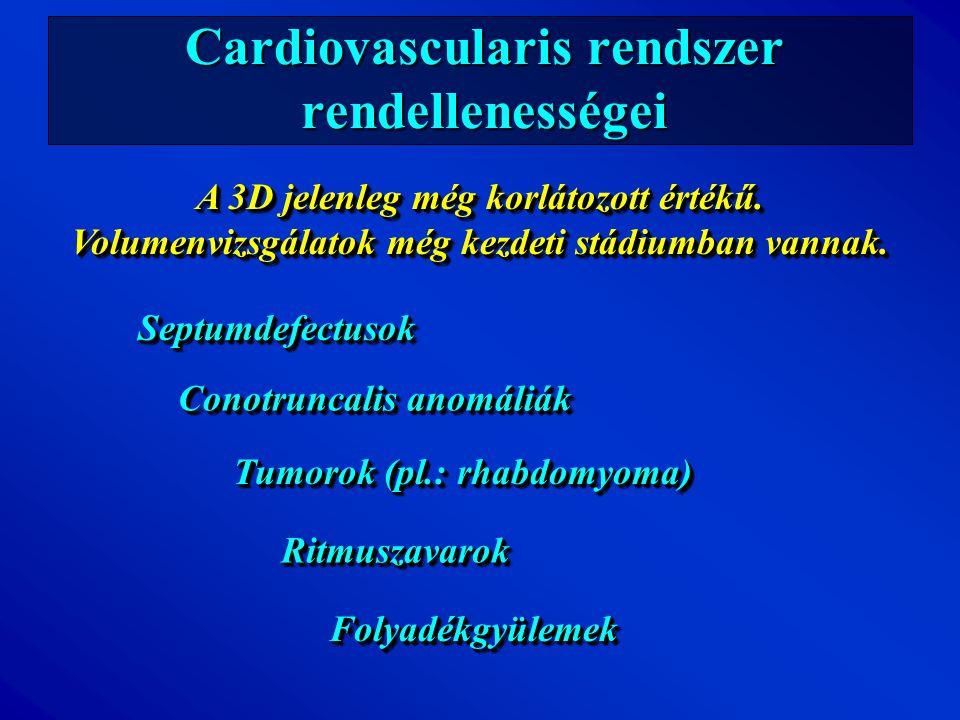 Cardiovascularis rendszer rendellenességei SeptumdefectusokSeptumdefectusok Conotruncalis anomáliák Tumorok (pl.: rhabdomyoma) RitmuszavarokRitmuszava