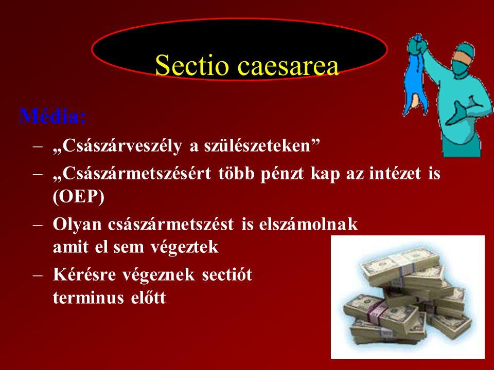 """Sectio caesarea Média: –""""Császárveszély a szülészeteken"""" –""""Császármetszésért több pénzt kap az intézet is (OEP) –Olyan császármetszést is elszámolnak"""