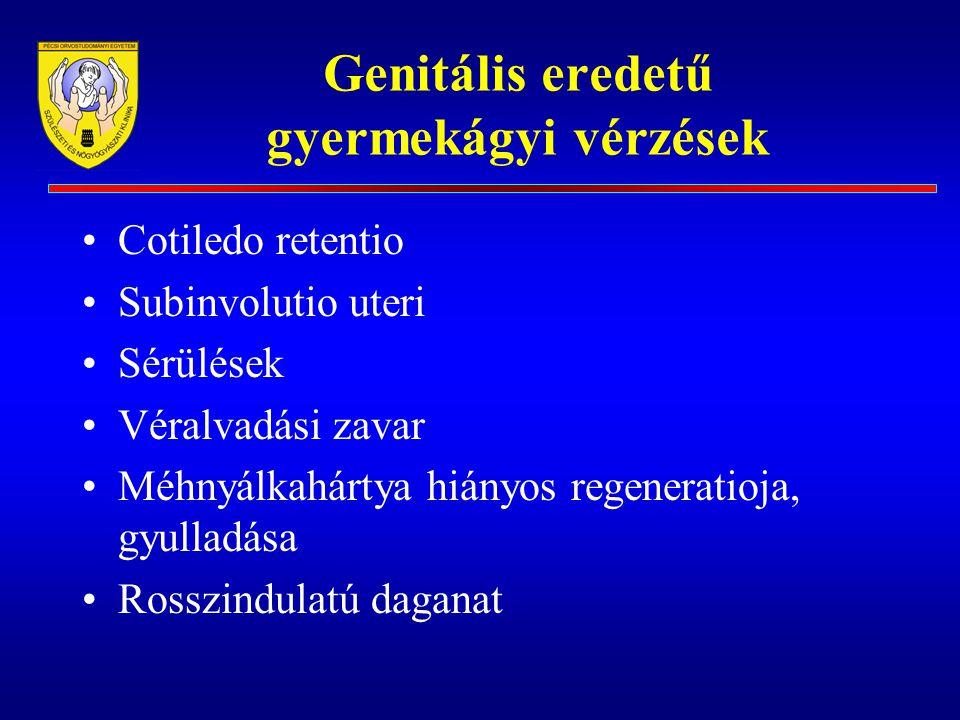 Genitális eredetű gyermekágyi vérzések Cotiledo retentio Subinvolutio uteri Sérülések Véralvadási zavar Méhnyálkahártya hiányos regeneratioja, gyullad