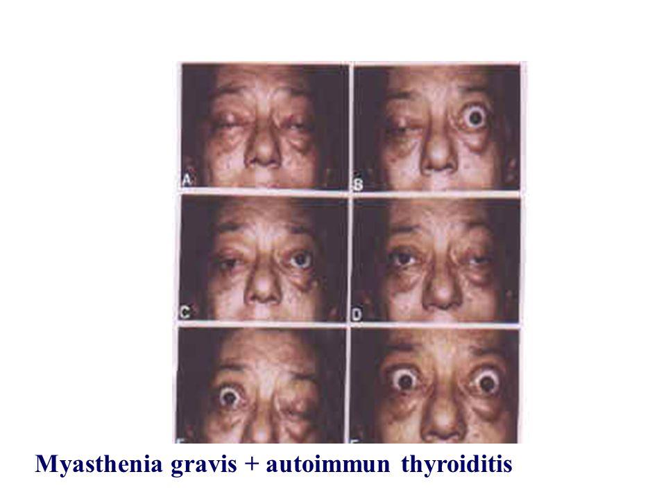Myasthenia gravis + autoimmun thyroiditis