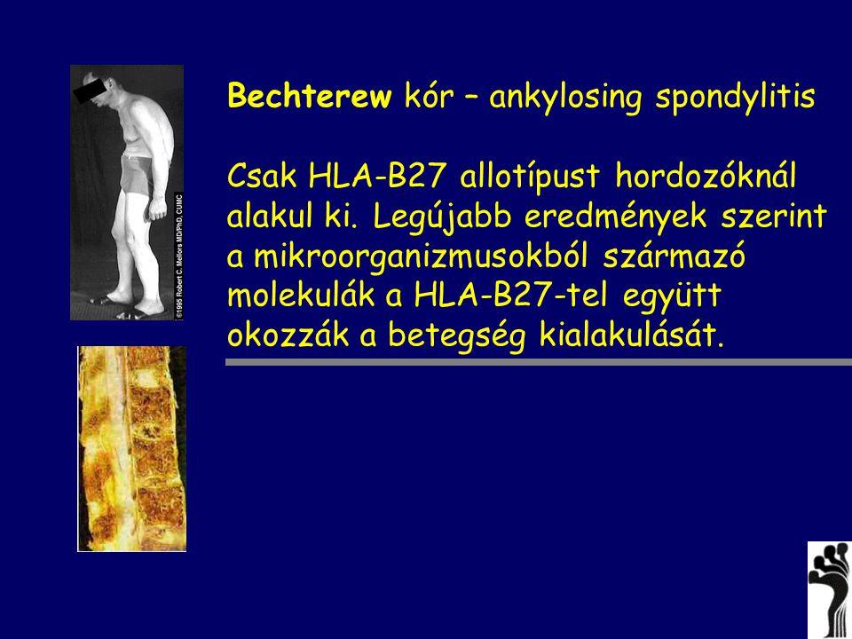 Bechterew kór – ankylosing spondylitis Csak HLA-B27 allotípust hordozóknál alakul ki. Legújabb eredmények szerint a mikroorganizmusokból származó mole
