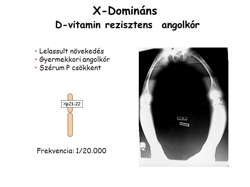 X-Domináns D-vitamin rezisztens angolkór Lelassult növekedés Gyermekkori angolkór Szérum P csökkent Frekvencia: 1/20.000