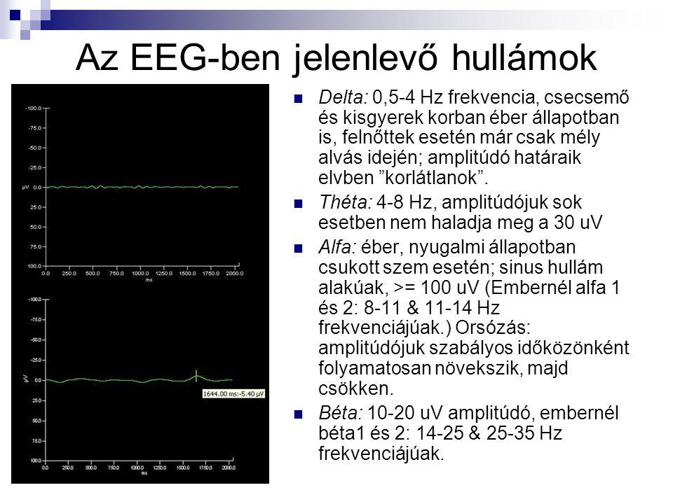 Az EEG-ben jelenlevő hullámok Delta: 0,5-4 Hz frekvencia, csecsemő és kisgyerek korban éber állapotban is, felnőttek esetén már csak mély alvás idején