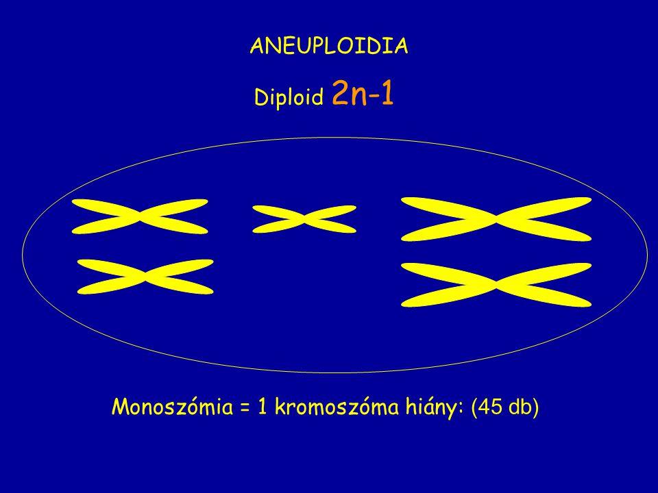 ANEUPLOIDIA Monoszómia = 1 kromoszóma hiány: (45 db) Diploid 2n-1