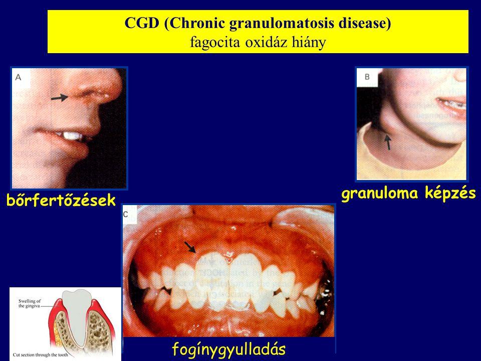CGD (Chronic granulomatosis disease) fagocita oxidáz hiány fogínygyulladás bőrfertőzések granuloma képzés