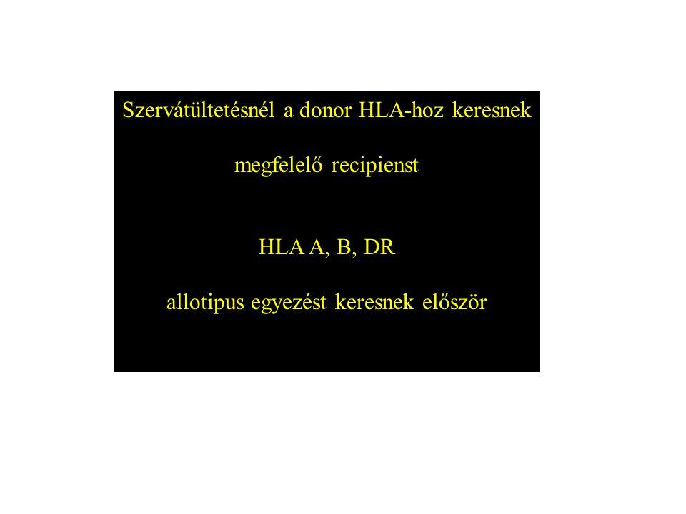 Szervátültetésnél a donor HLA-hoz keresnek megfelelő recipienst HLA A, B, DR allotipus egyezést keresnek először
