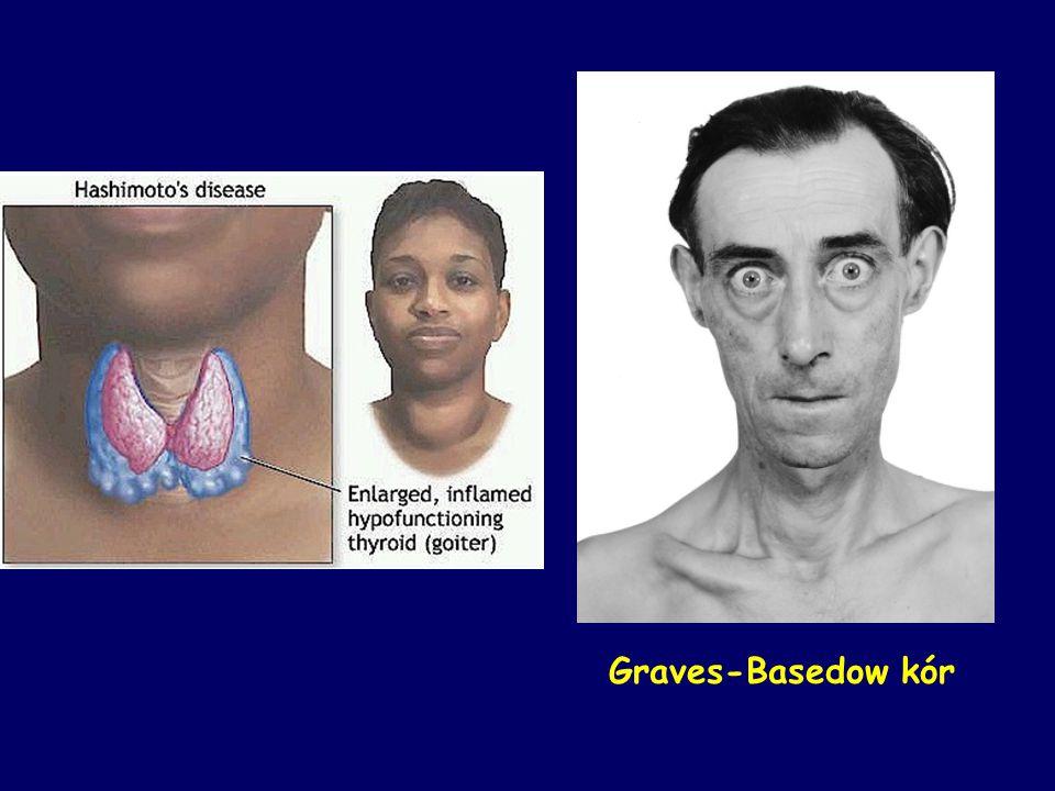 Graves-Basedow kór