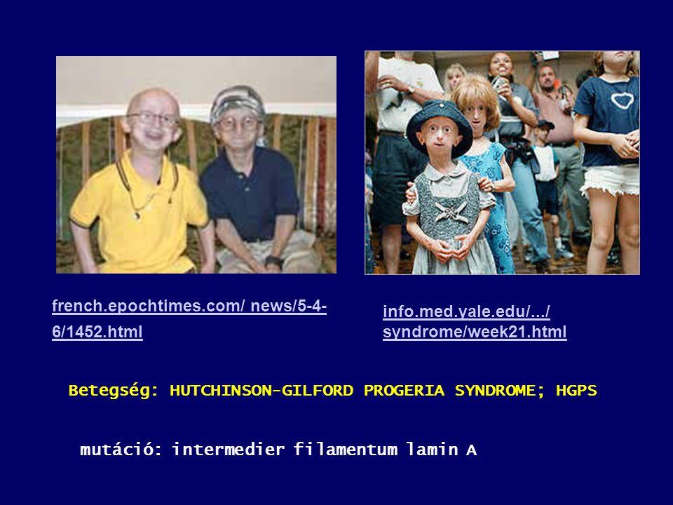 french.epochtimes.com/ news/5-4- 6/1452.html info.med.yale.edu/.../ syndrome/week21.html Betegség: HUTCHINSON-GILFORD PROGERIA SYNDROME; HGPS mutáció: