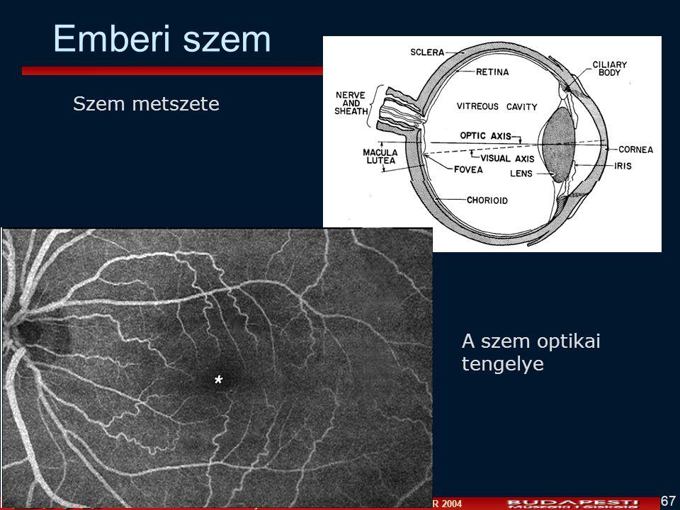 Vámossy Zoltán IAR 2004 67 Emberi szem A szem optikai tengelye Szem metszete