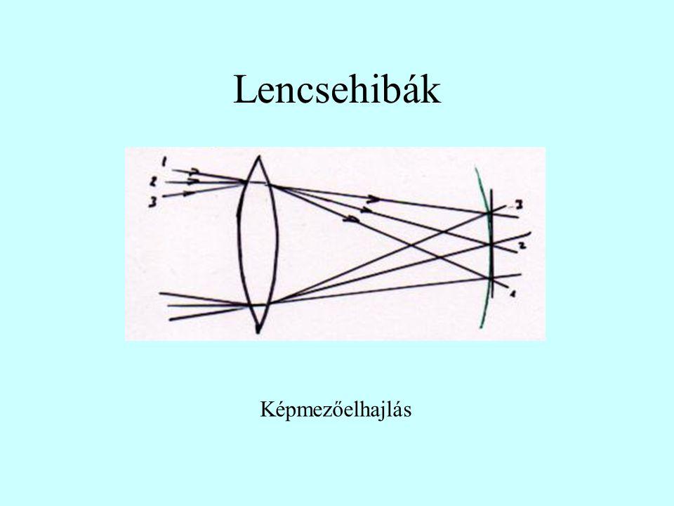 Lencsehibák Asztigmatizmus
