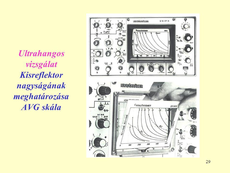 29 Ultrahangos vizsgálat Kisreflektor nagyságának meghatározása AVG skála
