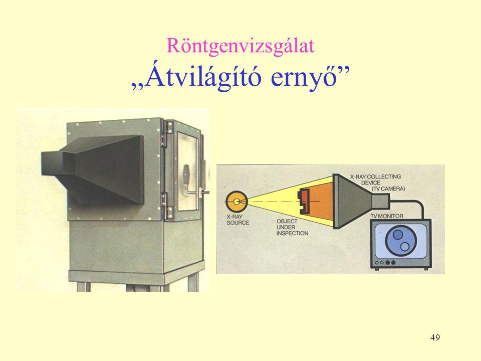 """49 Röntgenvizsgálat """"Átvilágító ernyő"""