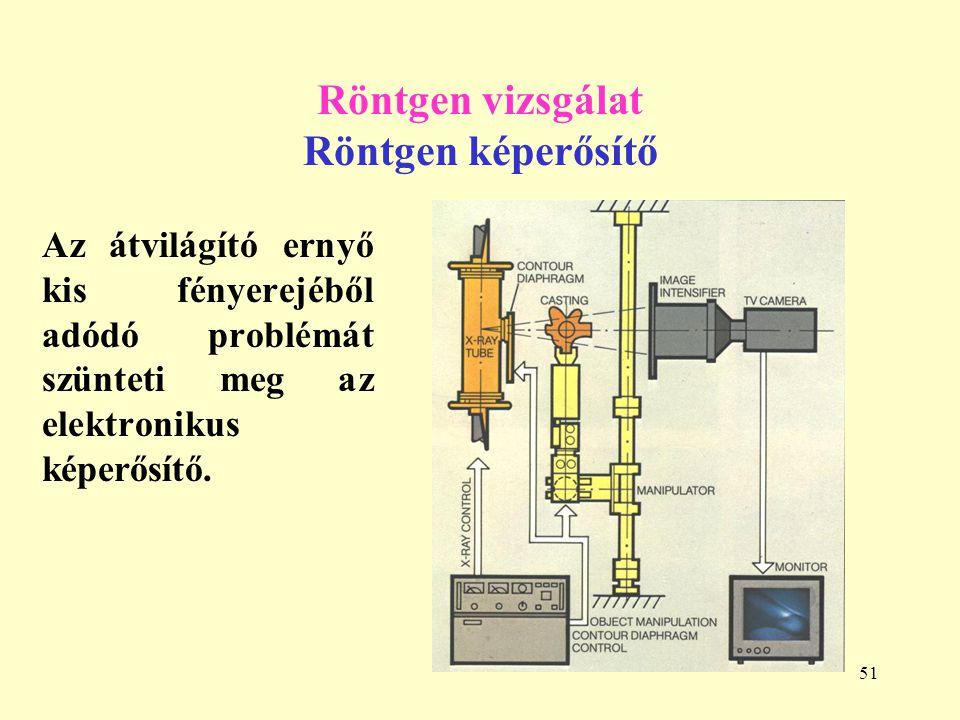 51 Röntgen vizsgálat Röntgen képerősítő Az átvilágító ernyő kis fényerejéből adódó problémát szünteti meg az elektronikus képerősítő.