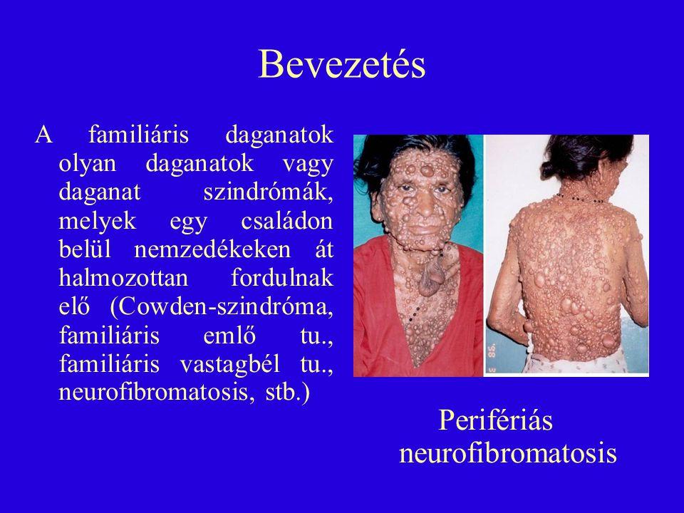 Apa: rosszul differenciált, kifekélyesedett adenocarcinoma, fokozott apoptózissal (HE, 224x) Nagyapa: Közepesen differenciált, desmoplasticus reakciót mutató adenocarcinoma (HE, 224x)