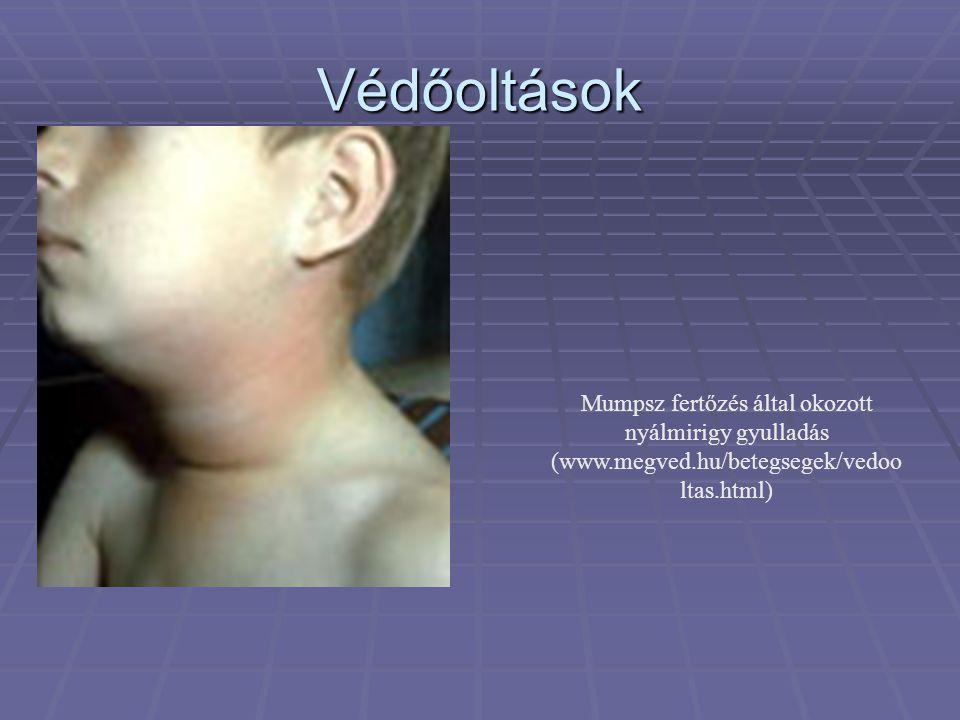Védőoltások Mumpsz fertőzés által okozott nyálmirigy gyulladás (www.megved.hu/betegsegek/vedoo ltas.html)