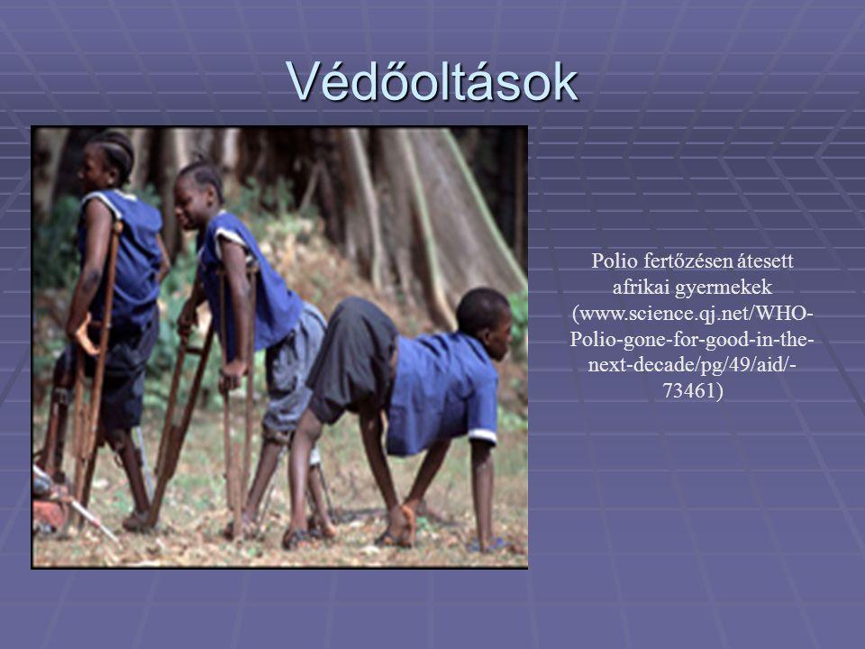 Védőoltások Polio fertőzésen átesett afrikai gyermekek (www.science.qj.net/WHO- Polio-gone-for-good-in-the- next-decade/pg/49/aid/ 73461)