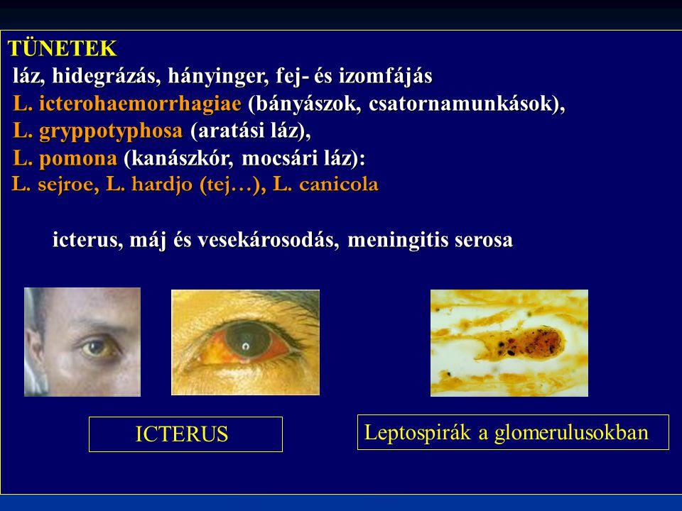 TÜNETEK láz, hidegrázás, hányinger, fej- és izomfájás láz, hidegrázás, hányinger, fej- és izomfájás L. icterohaemorrhagiae (bányászok, csatornamunkáso