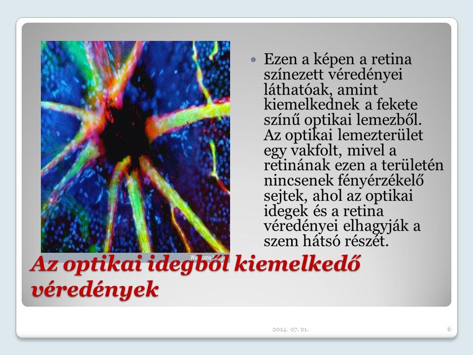 Ezen a képen az látható, amint az emberi szőrsejtek térhatású csillószőrei felsorakoznak a fülben. Ezek észlelik a hangrezgések által keltett mechanik