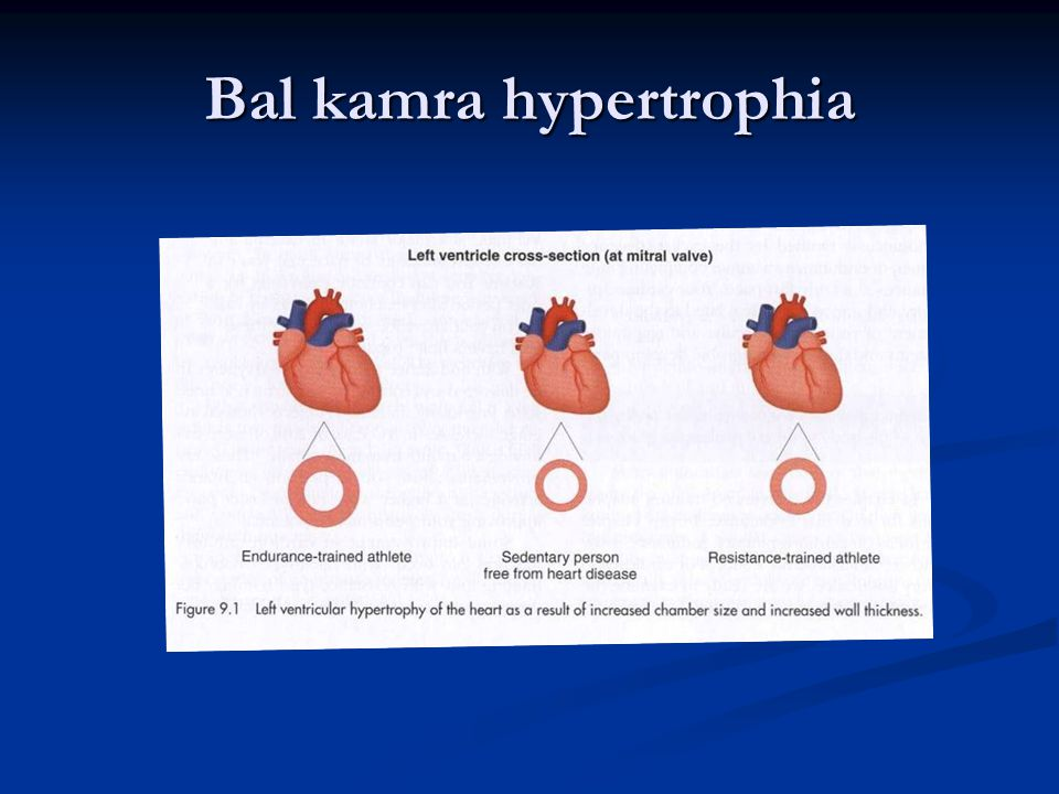 Bal kamra hypertrophia